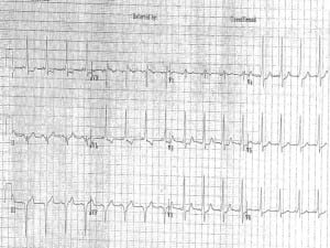 WPW on the 12 Lead EKG